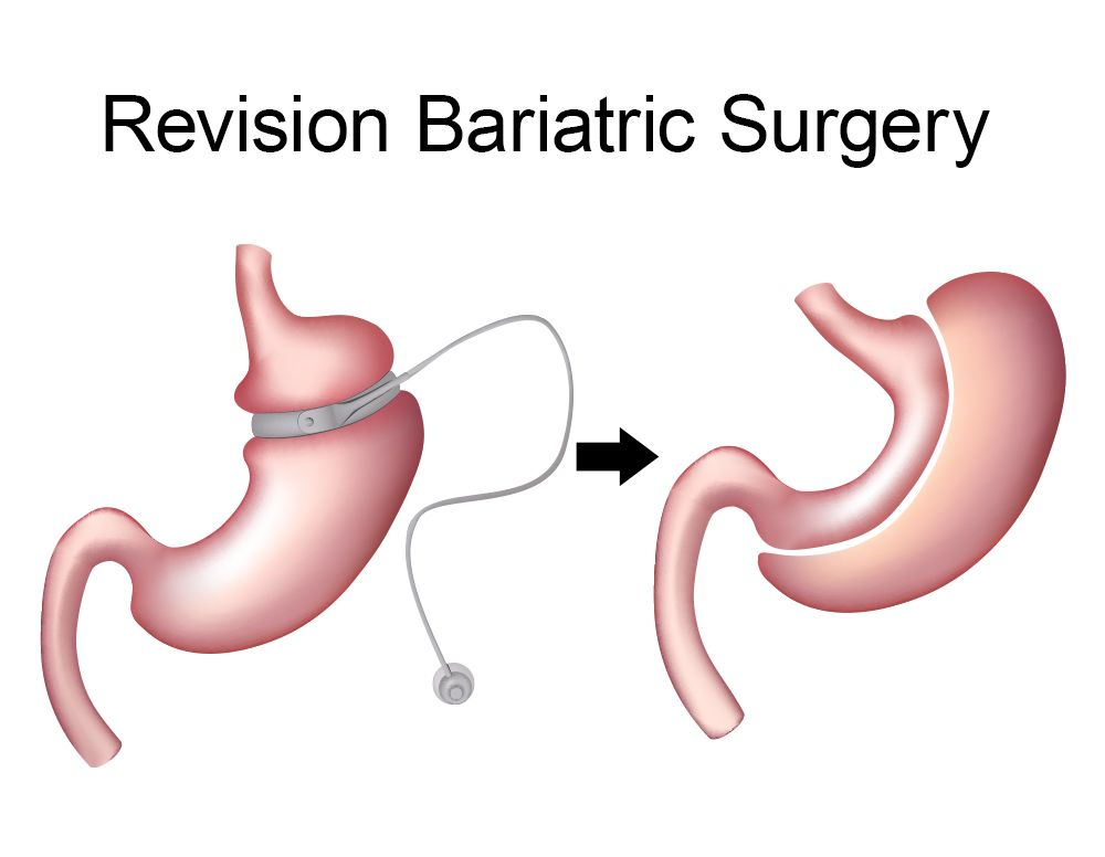 How revision bariatric surgery works