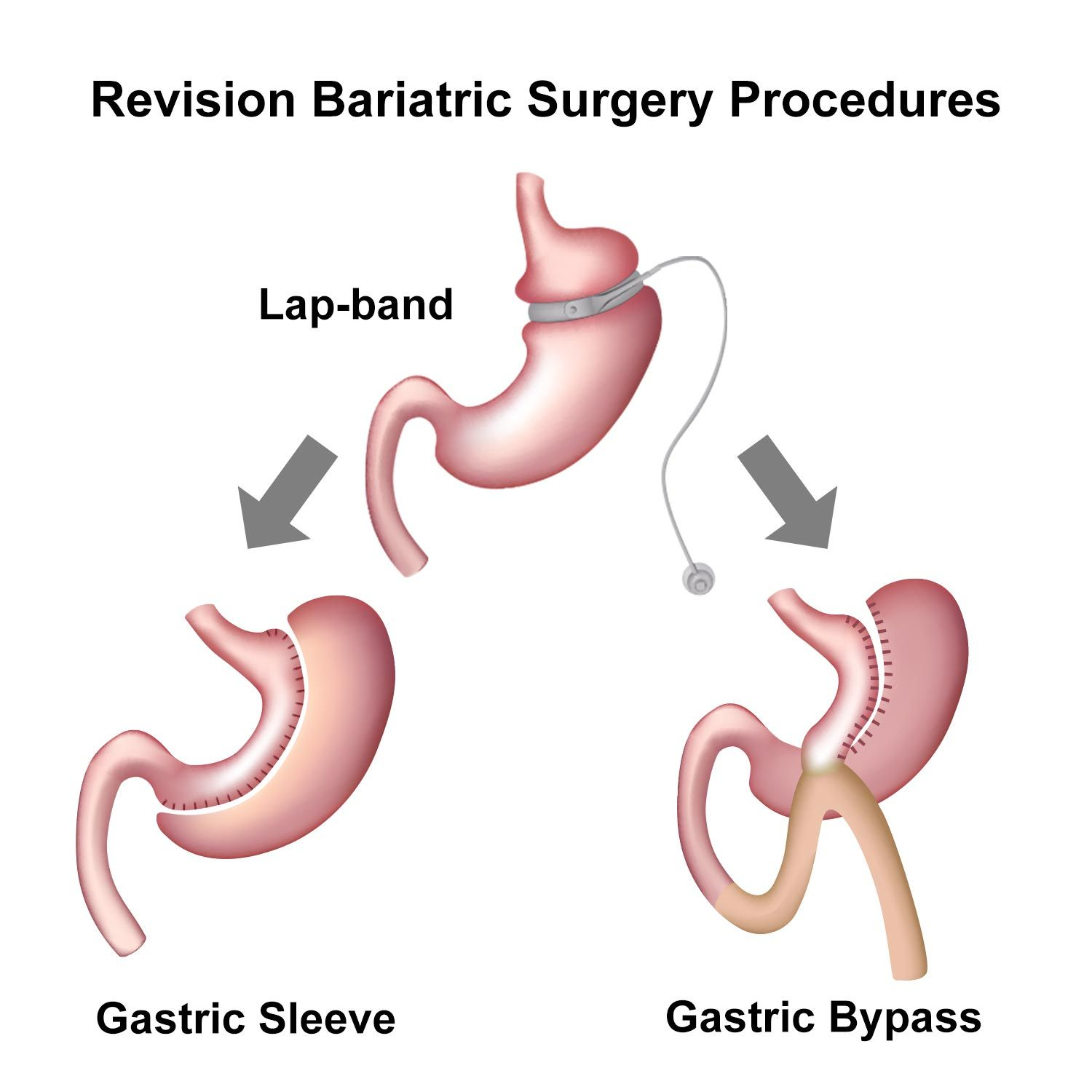 Gastric Bypass Revision Long Beach Ca Los Angeles Ca