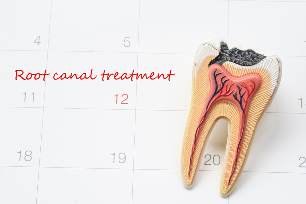 "An illustration of a calendar with the words ""Root Canal Treatment"" and a cross-section of an infected tooth overlaid on it"