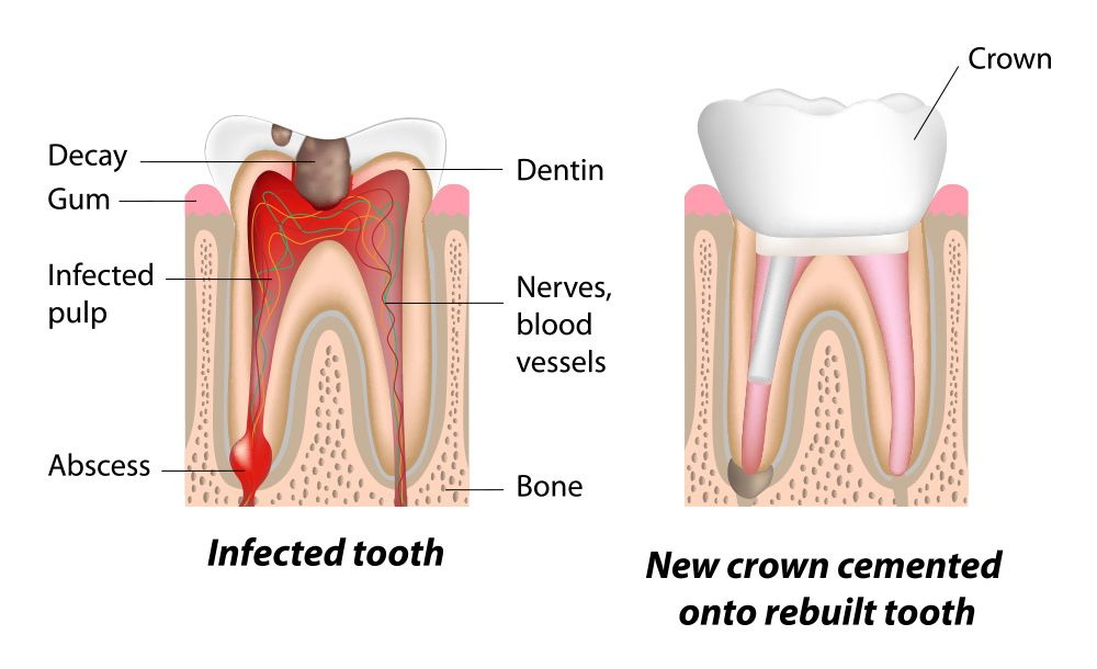 Root canal therapy before and after