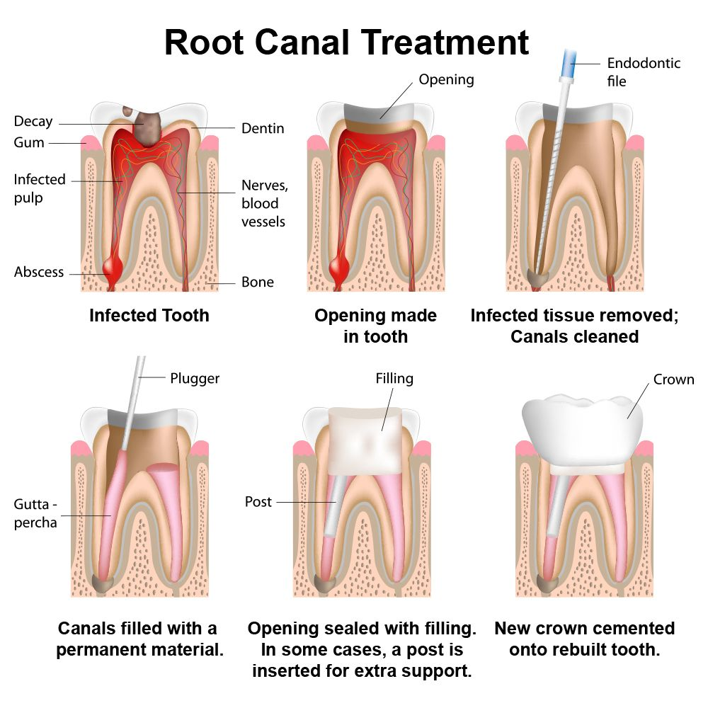 Root Canal Therapy – Flowood, MS - Dentist - Dr. Danny O\'Keefe
