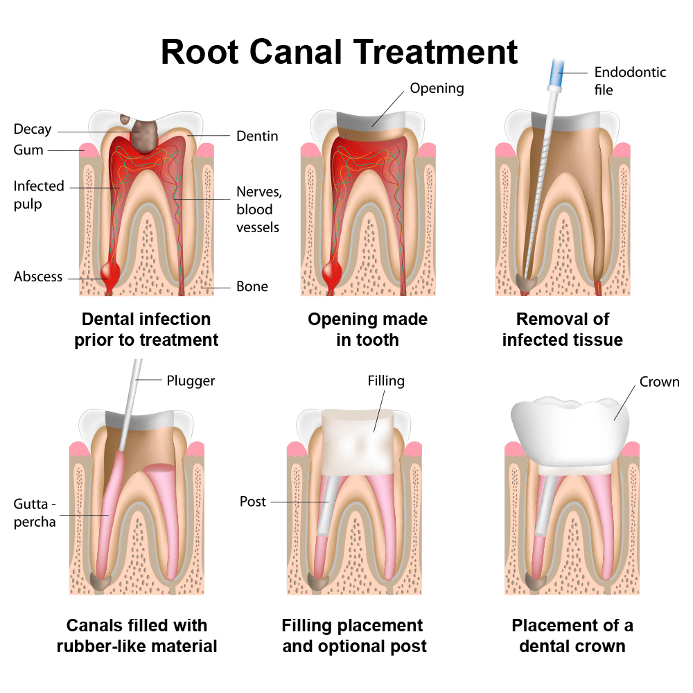 Diagram showing root canal treatment