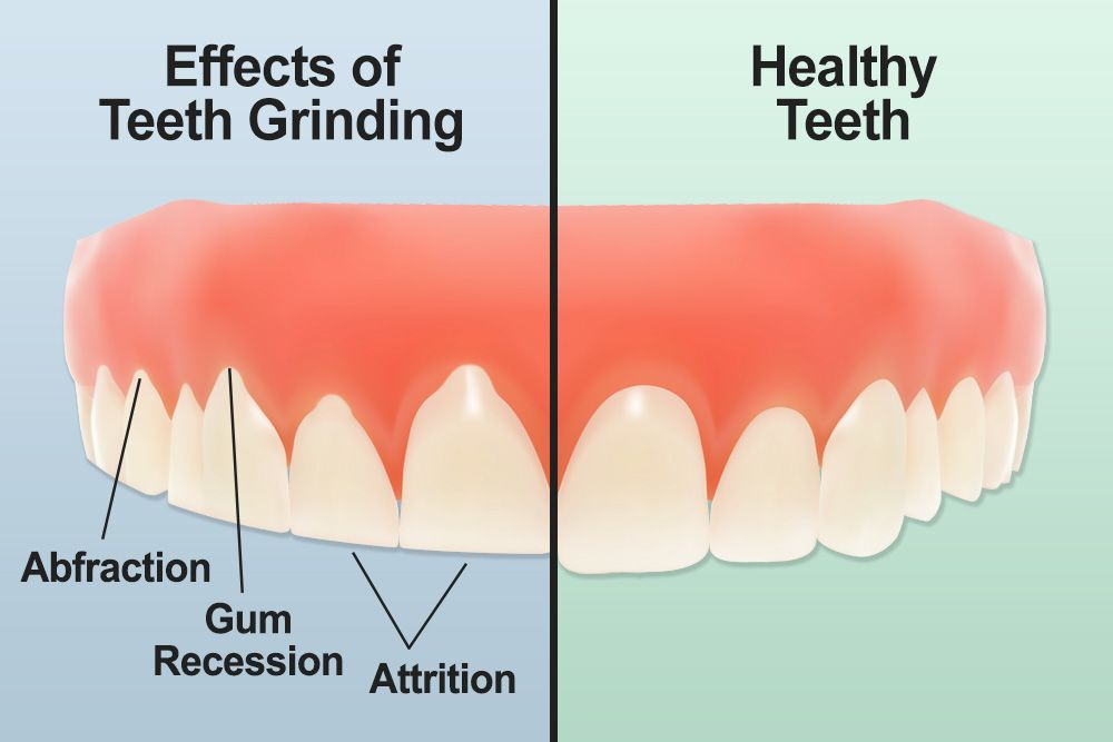 A diagram of healthy teeth versus teeth showing the effects of teeth grinding