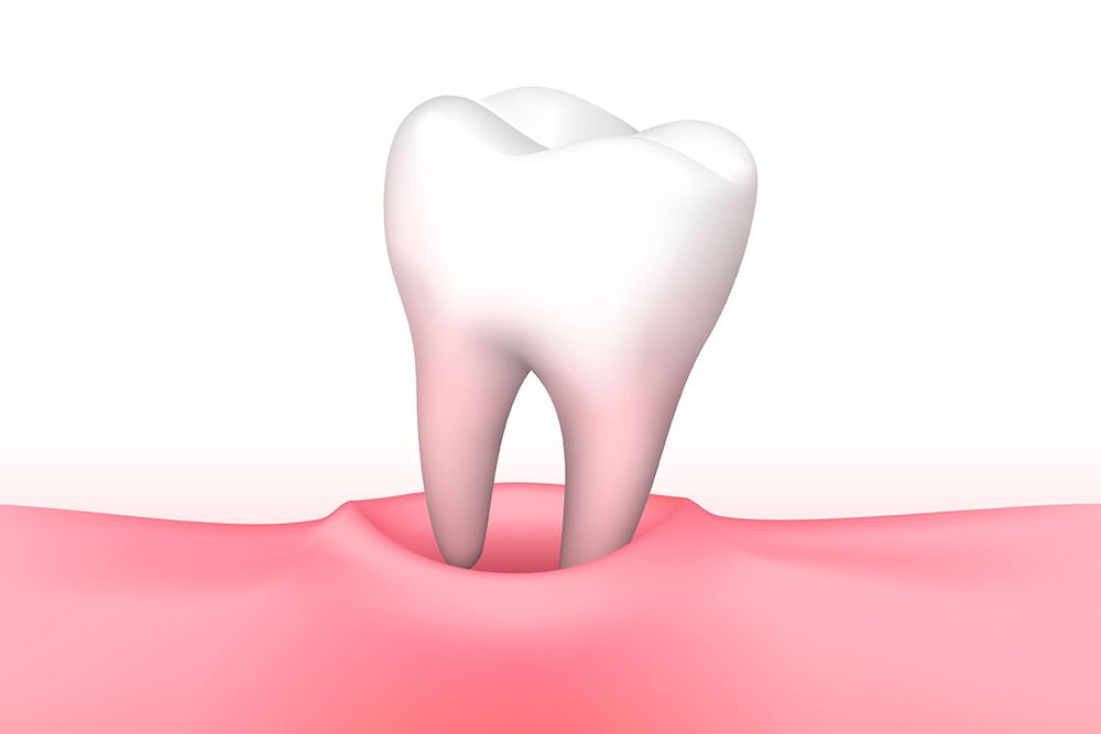 Illustration shows molar lifting out of tooth socket