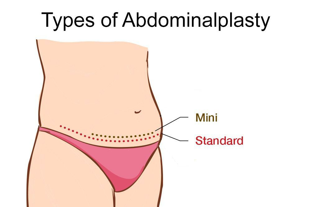 illustration of mini versus full tummy tuck