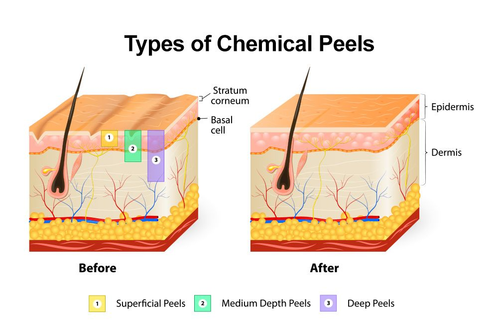 Image of depths of chemical peels