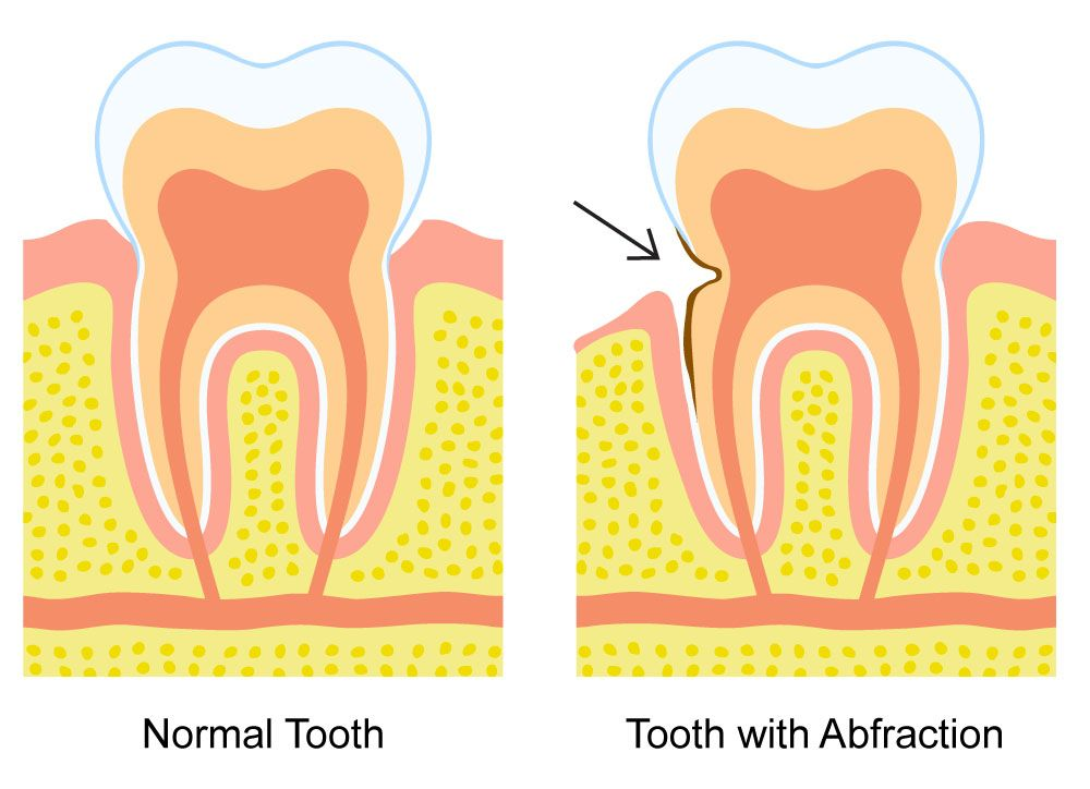 An illustration of a normal tooth and a tooth with abfraction