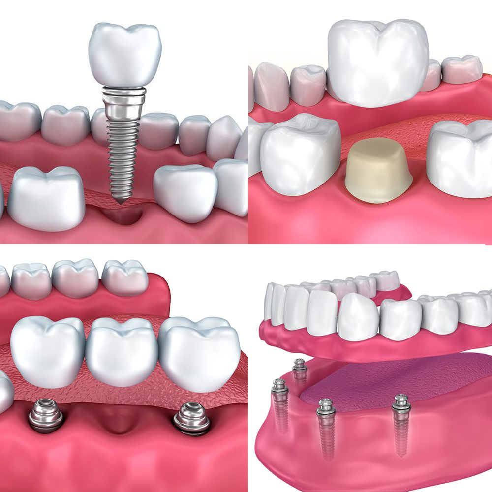 Implant-Supported Crowns