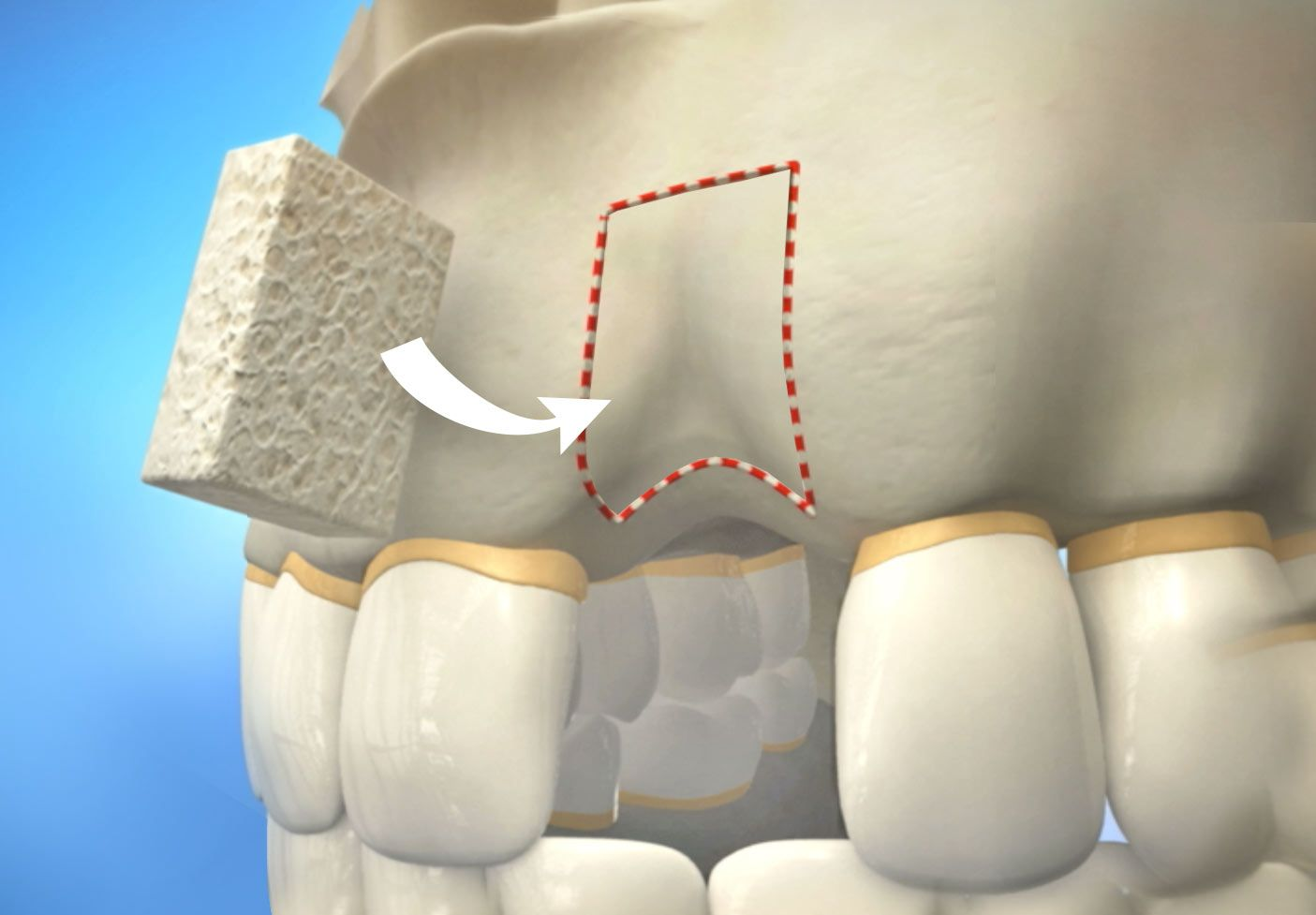 Illustration of bone graft