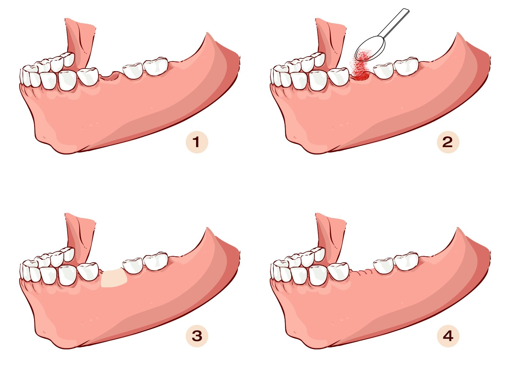 An illustration showing the steps of a bone graft.