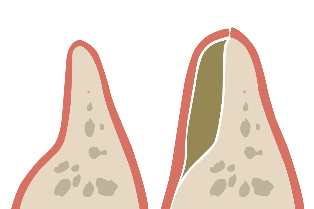 An illustration of jawbone loss