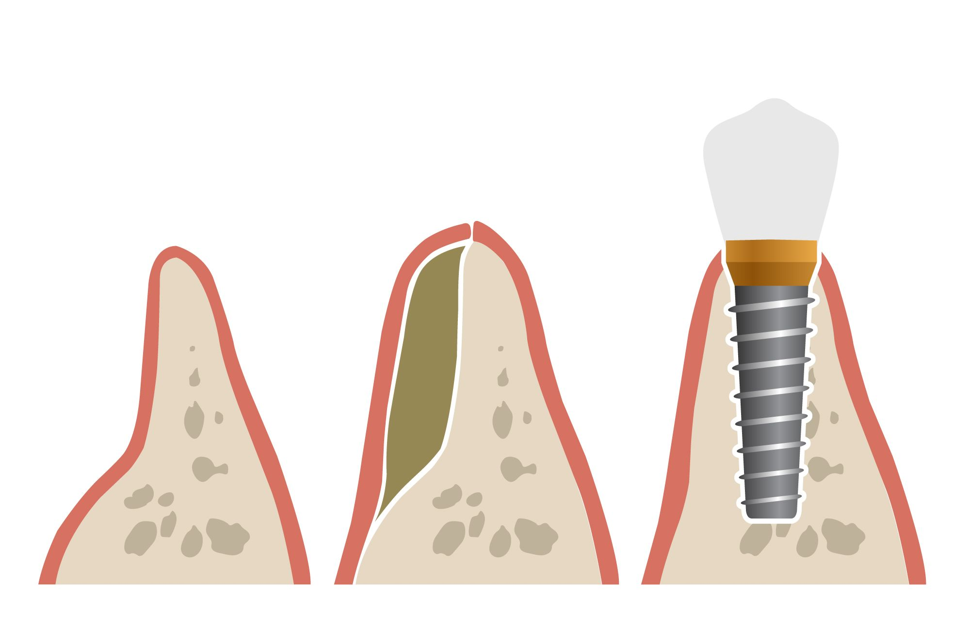 An illustration of a bone graft and a dental implant