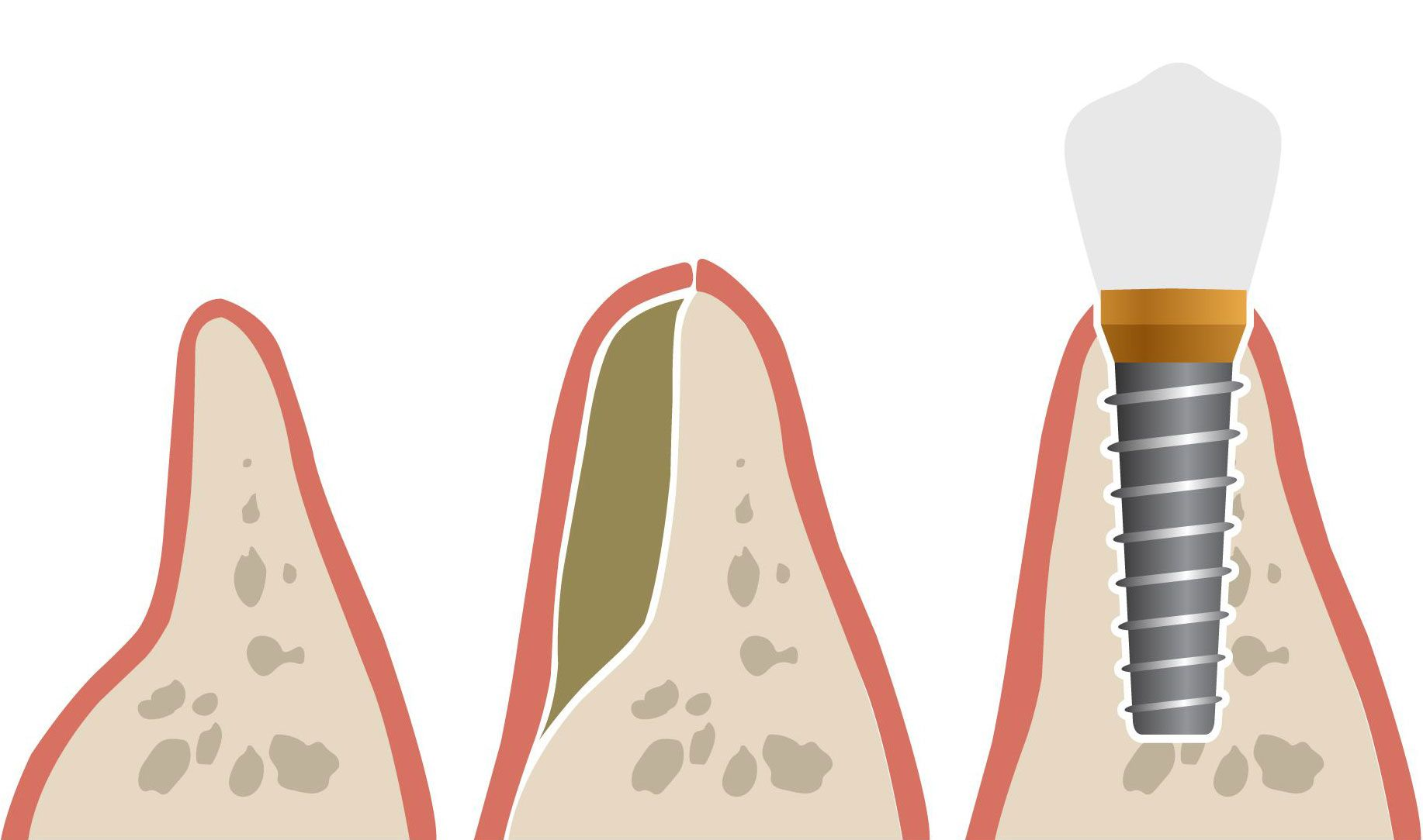 Bone grafting and dental implants