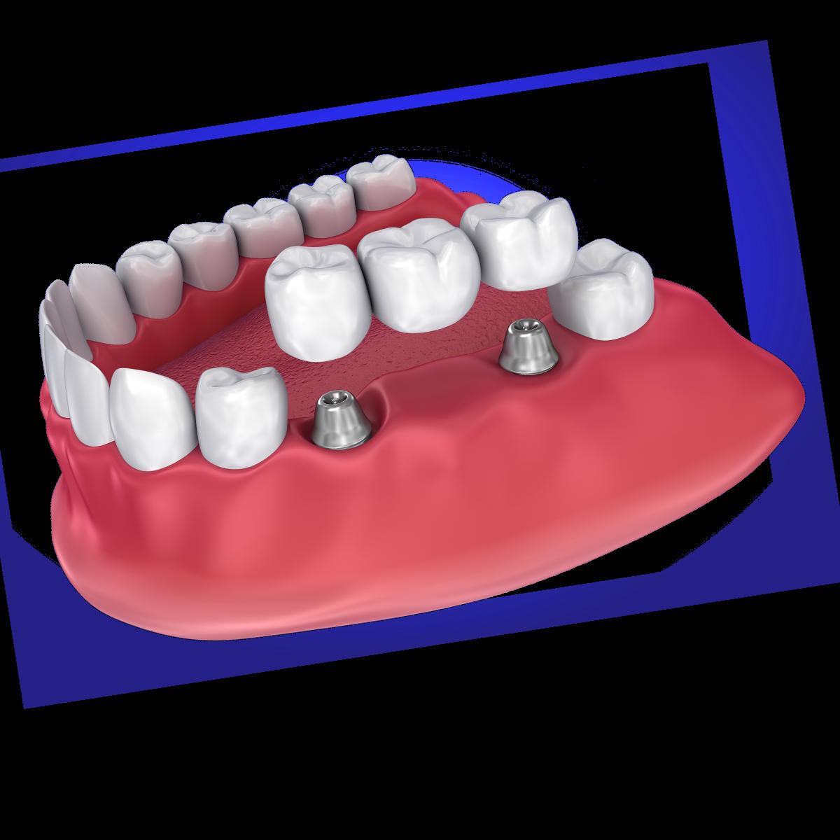 Digital image of implant-supported dental bridge