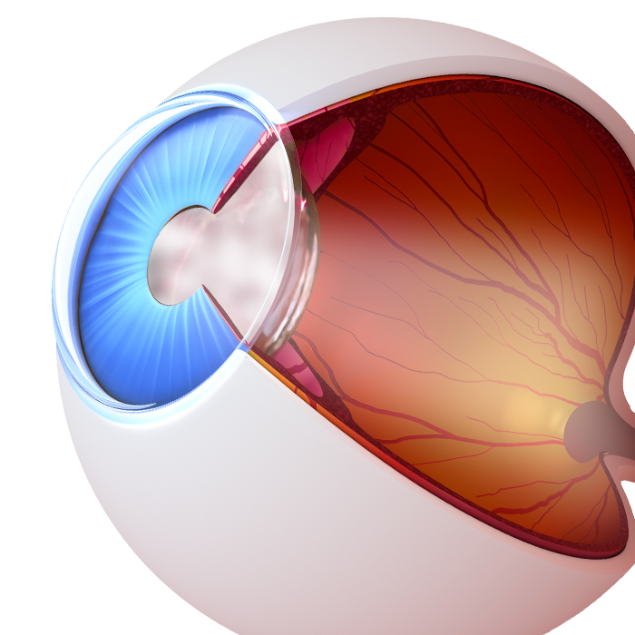 An illustration of an eye with cataracts