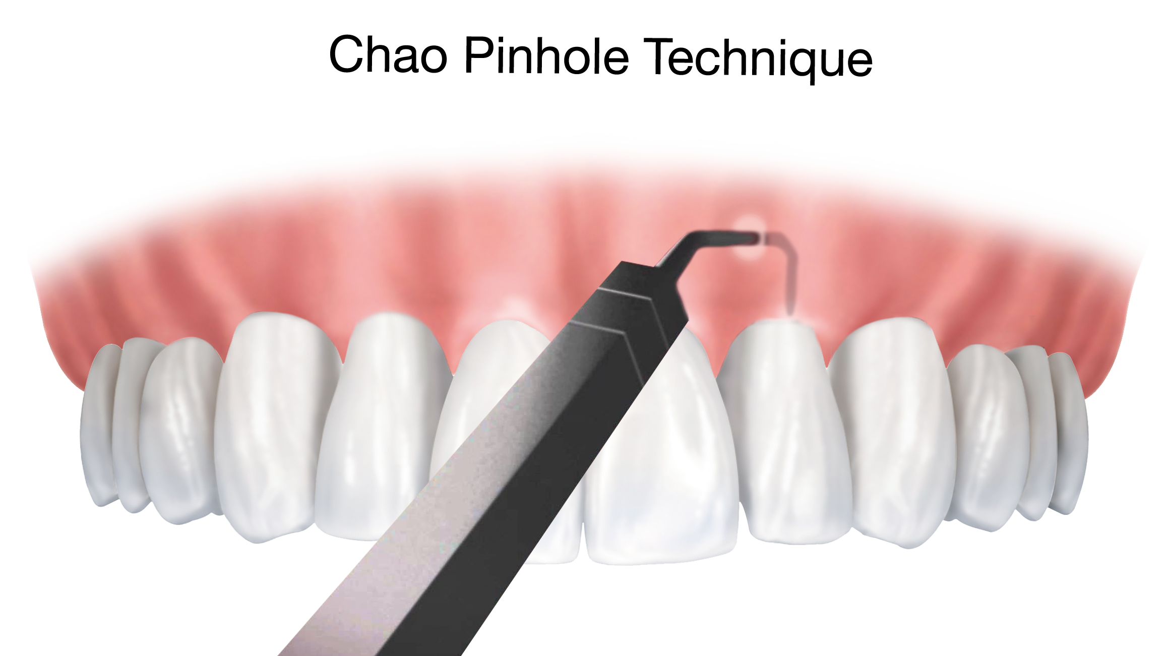 The Chao Pinhole Surgical Technique for gum recession