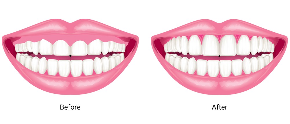 Before and after gum contouring illustration.