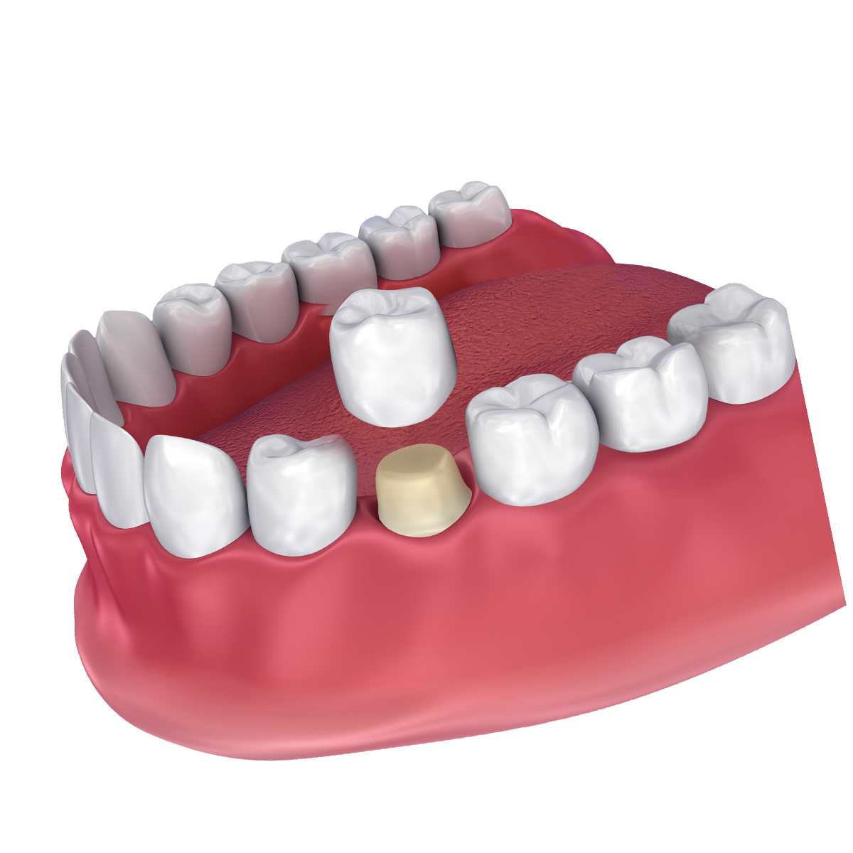 An illustration of a dental crown being placed on a tooth