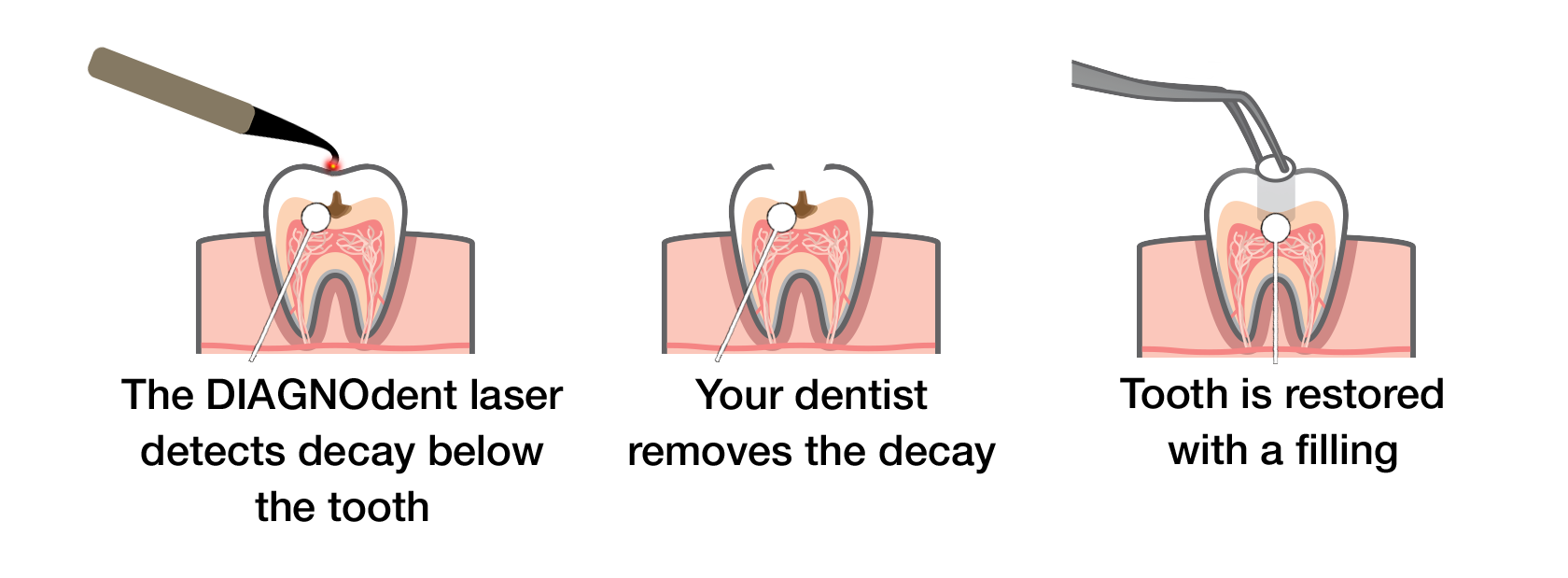 Treatment process using DIAGNOdent