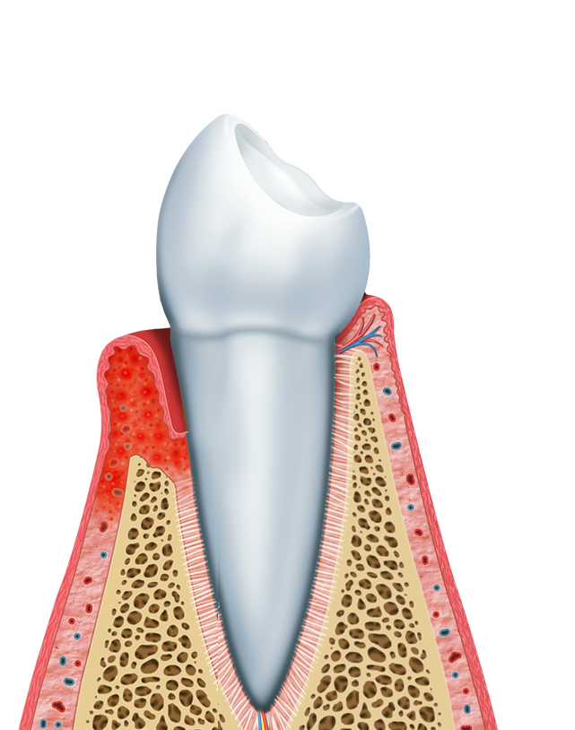 Illustrated side view of tooth