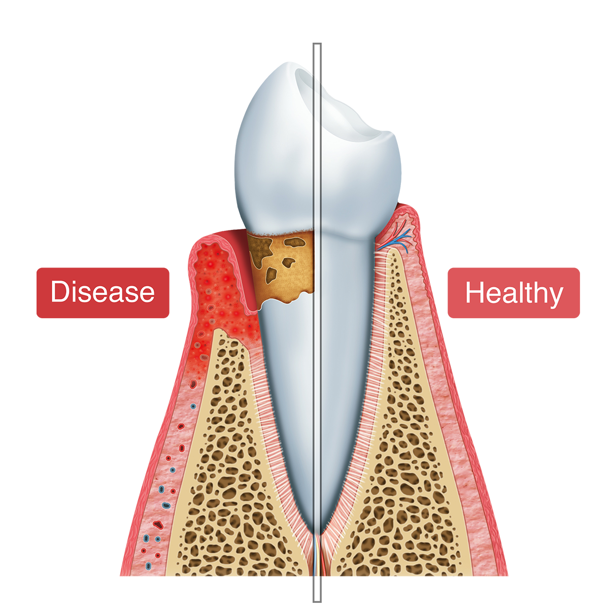 Graphic of a diseased tooth and a healthy tooth