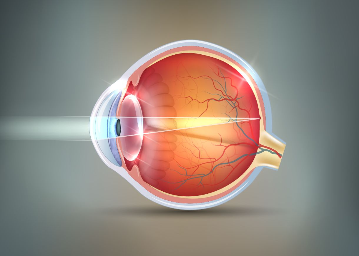 An illustration of an eye with a retinal tear
