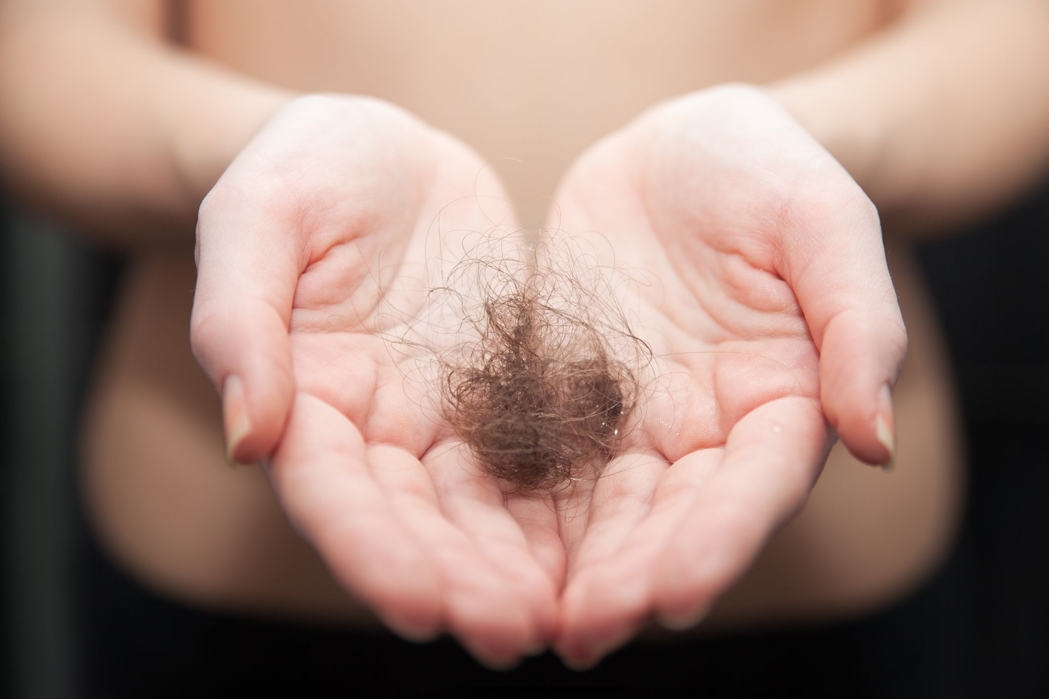 Holding a tuft of hair that's been shed