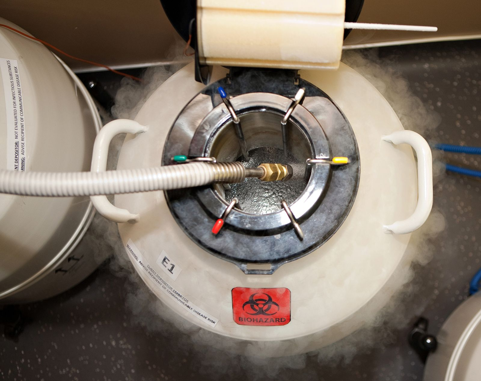 Cryopreservation sperm freezing