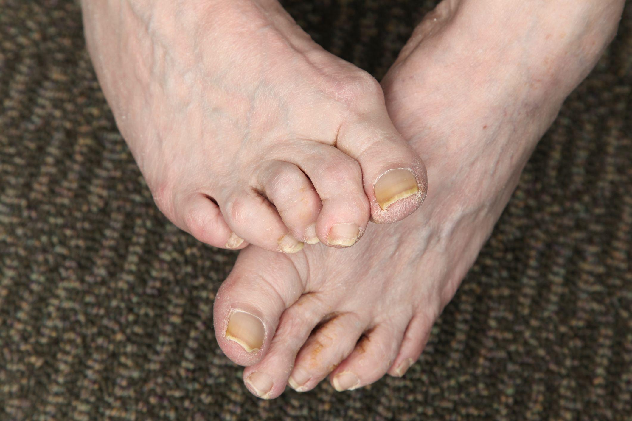 toes curling downward