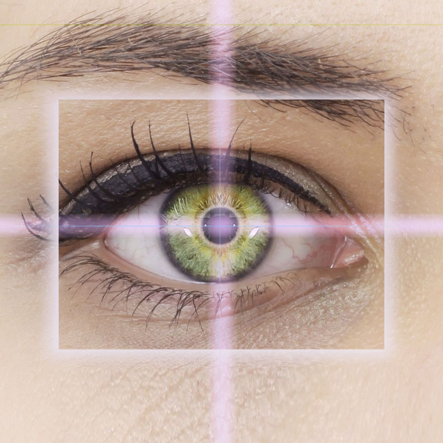 A eye undergoing laser vision correction
