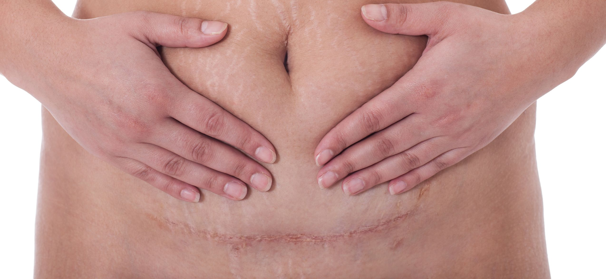 Photo of woman's hands on abdomen showing tummy tuck scar