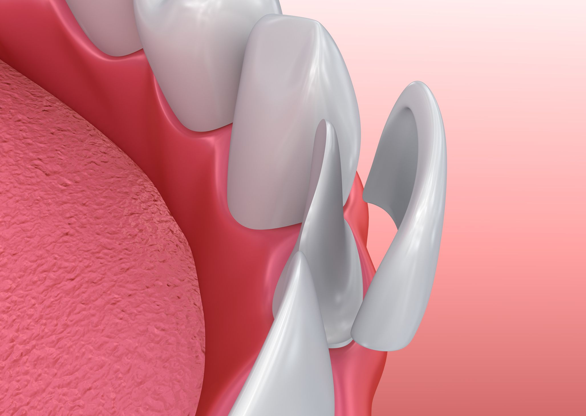 Illustration of a porcelain veneer on a small tooth