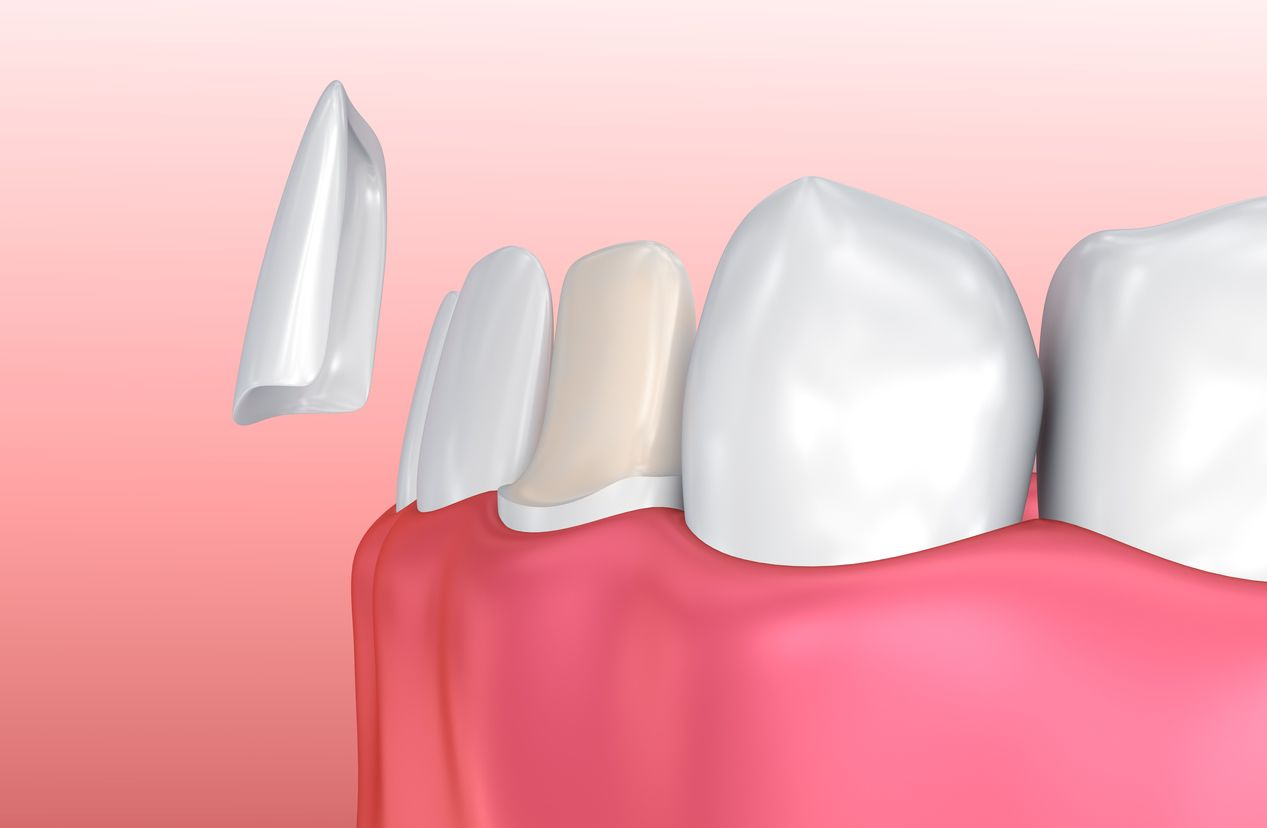 Drawing of a bottom row of teeth as a porcelain veneer is placed over a tooth