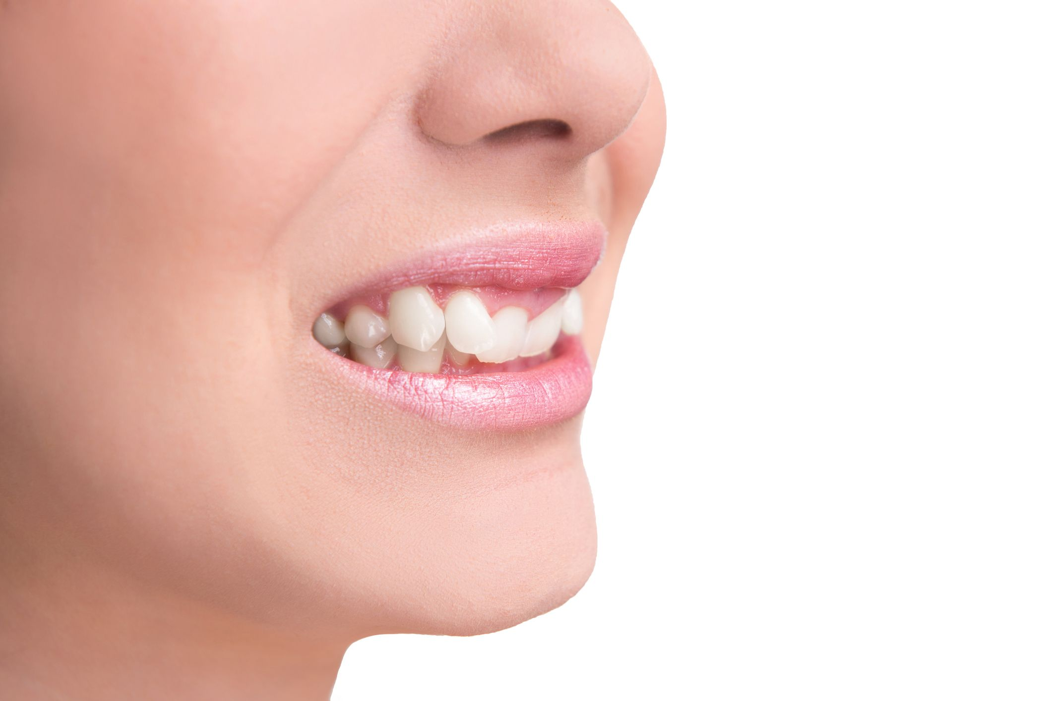 Photo of woman's smile with twisted tooth