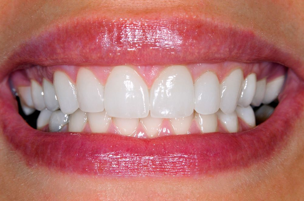 Woman smiling after cosmetic dental procedure