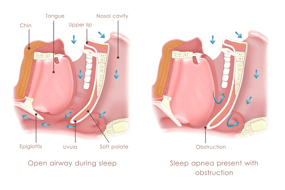 Open airway and sleep apnea sufferer