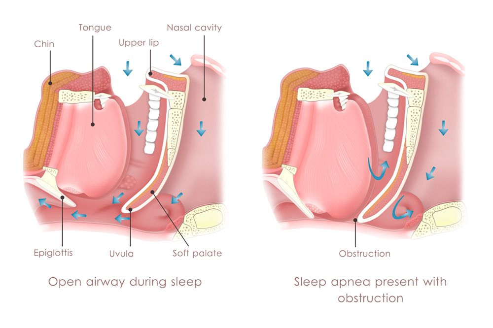 open airway vs. sleep apnea