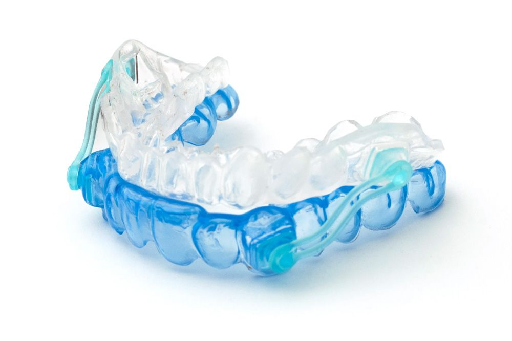 Image of oral appliance to treat TMJ disorders