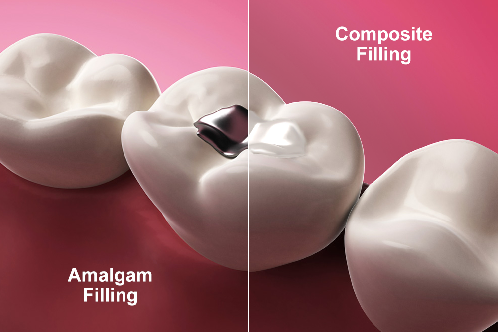Metal vs tooth-colored dental filling