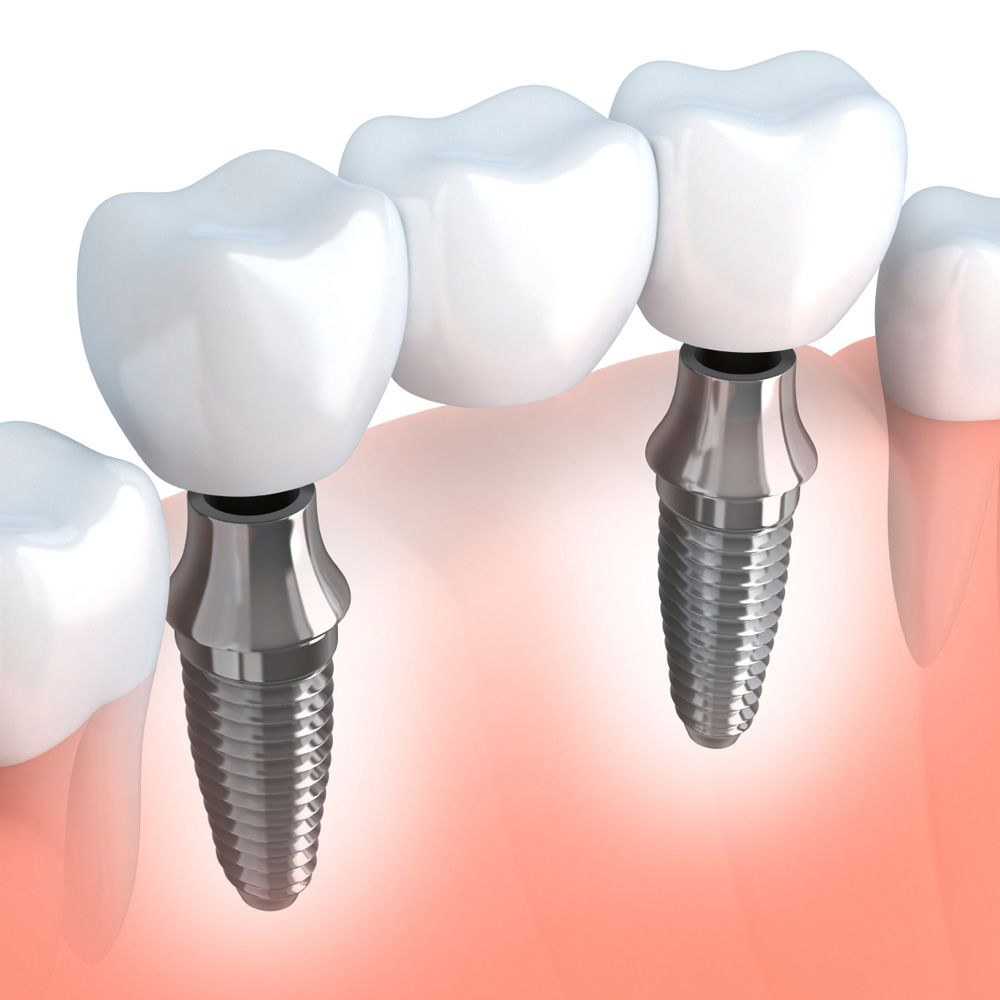 A diagram showing dental implants in action