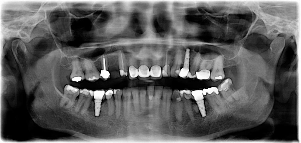 An X-ray of a mouth with dental implants and other restorations