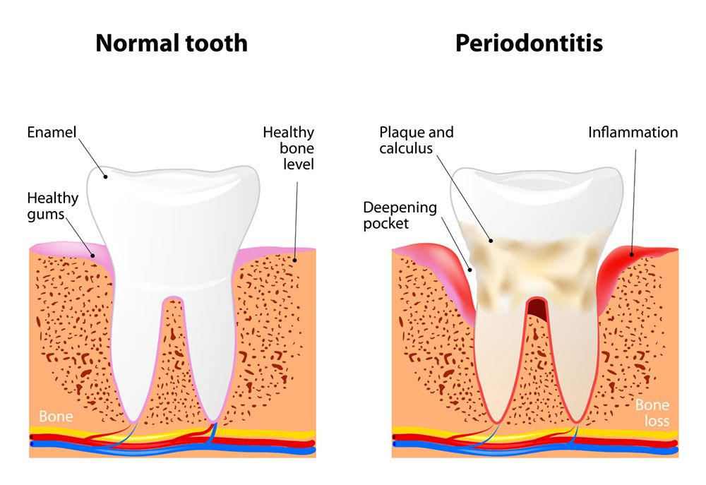 An illustration comparing a healthy tooth to a tooth embedded in gum tissue affected by periodontitis, or advanced gum disease
