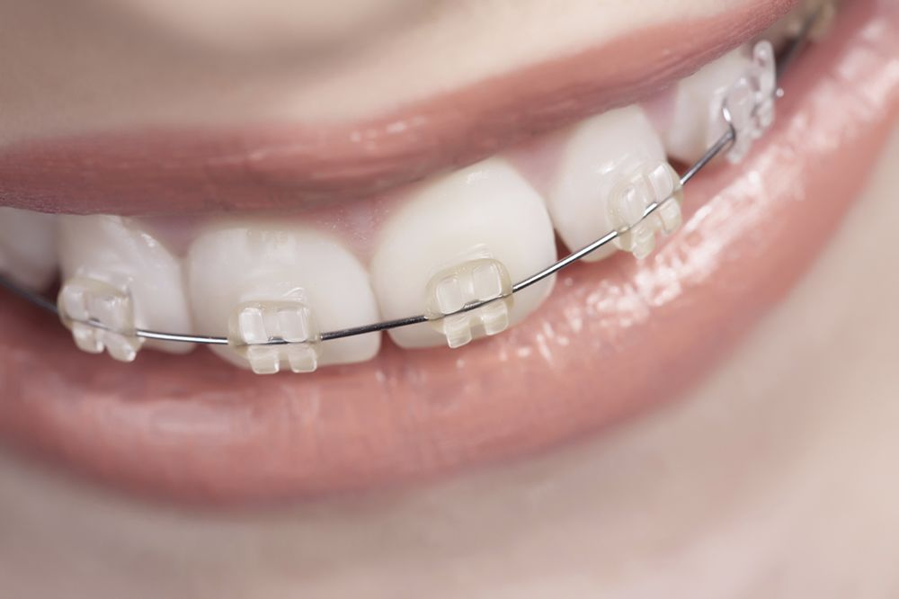 Braces on a woman's teeth.