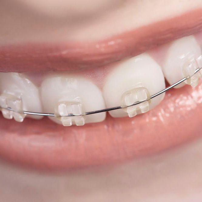 Zoomed-in photo of girl in braces