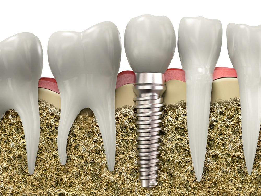 An illustration of a dental implant within the jawbone