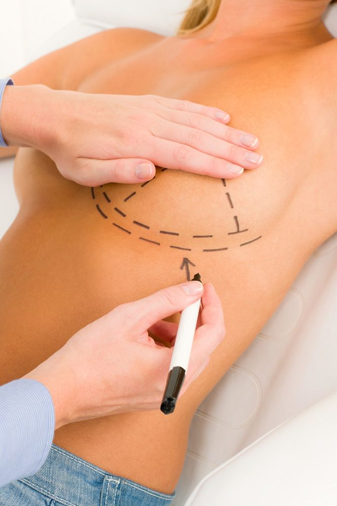 Surgical markings being drawn on a woman's breast