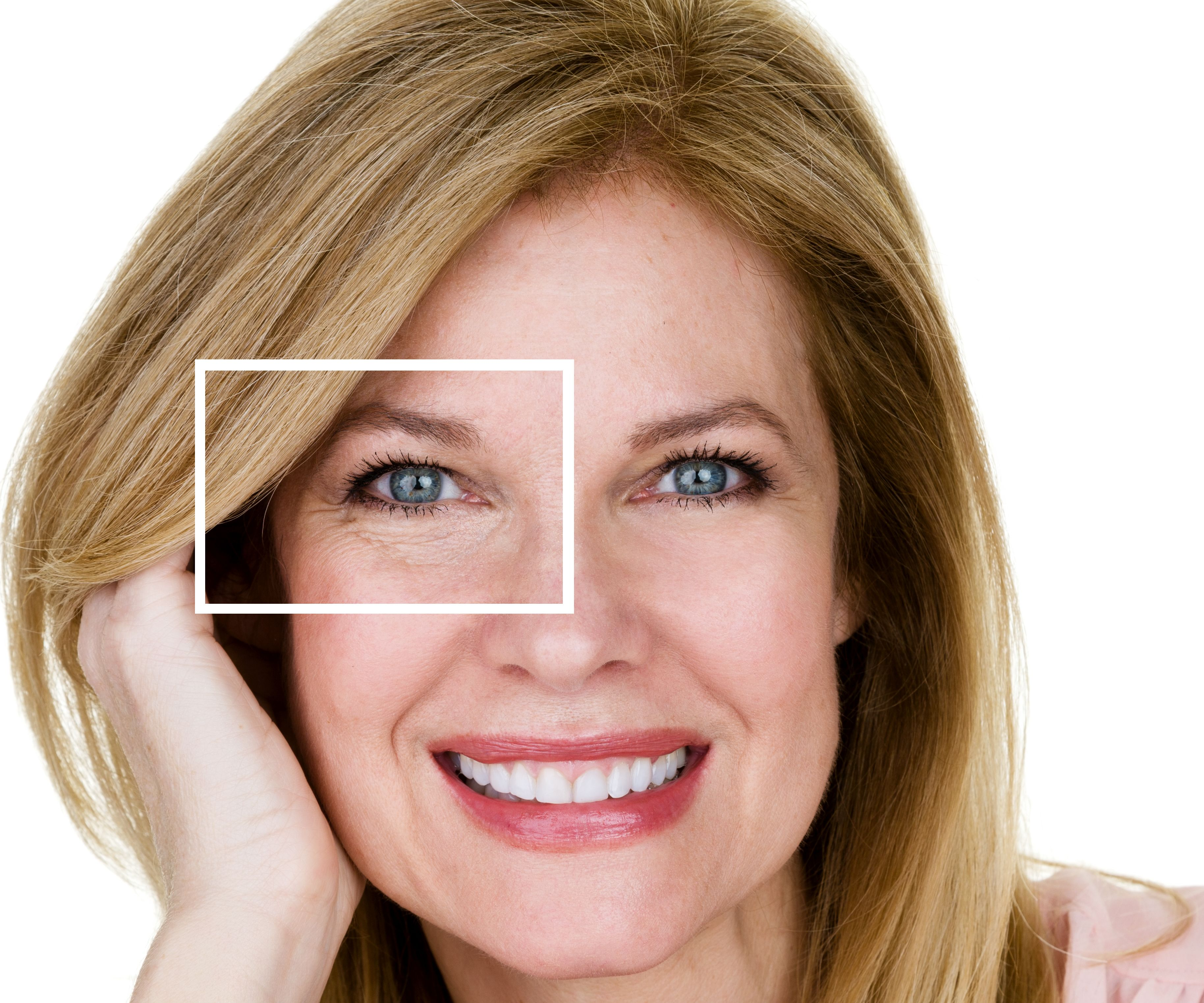 A woman's face with a box zooming in on wrinkles around her eyes
