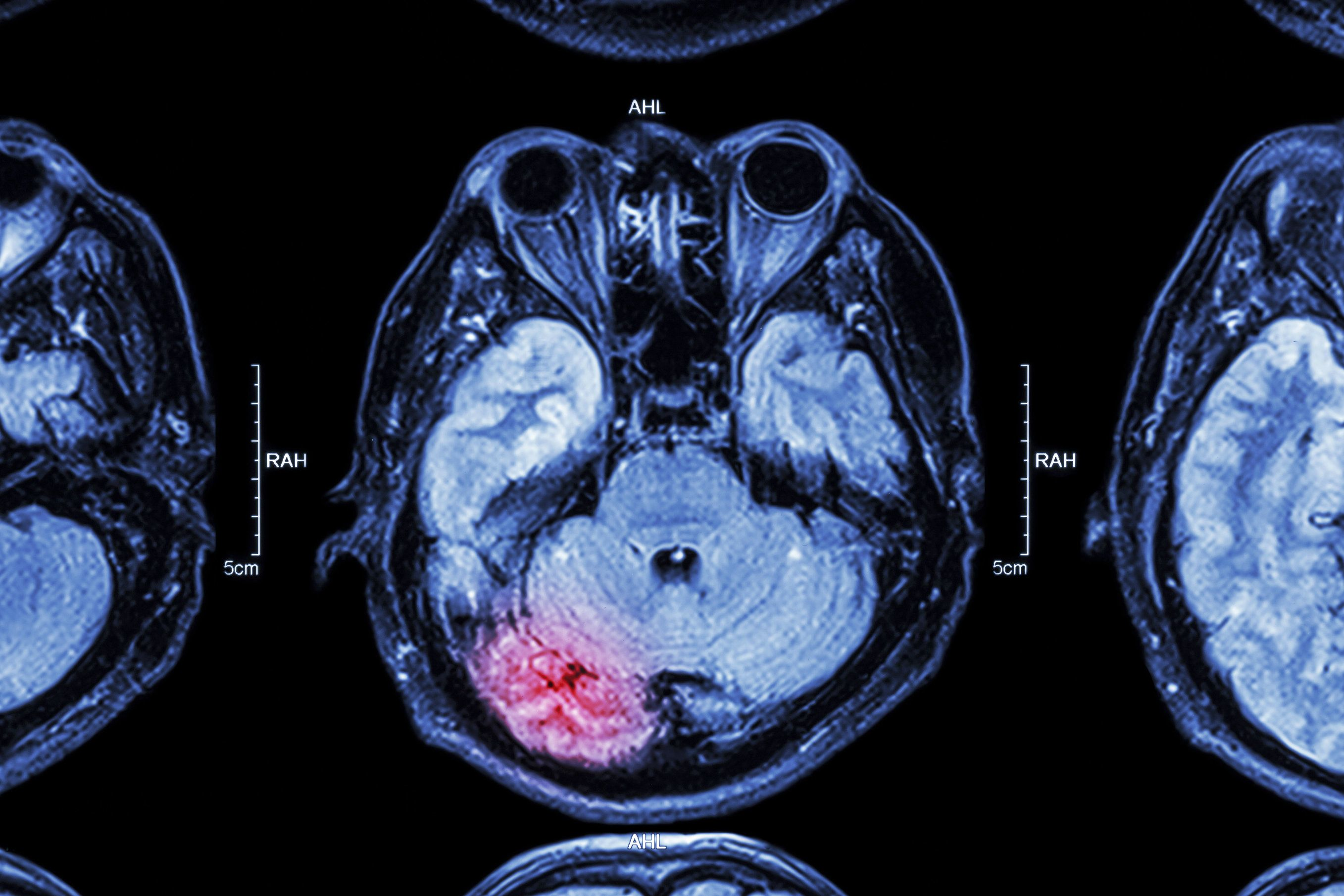Scan showing a brain injury