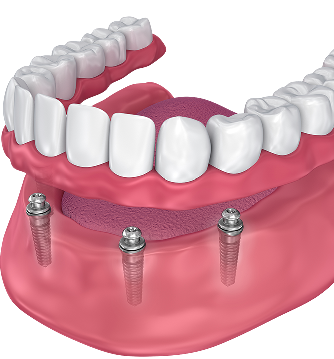 Digital image of mandibular implant-supported denture