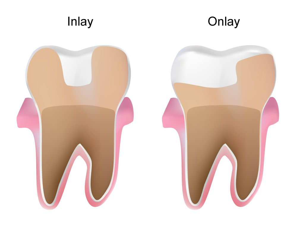 Digital image representation of a dental inlay and onlay
